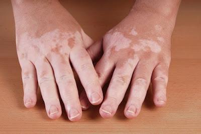Definición vitiligo