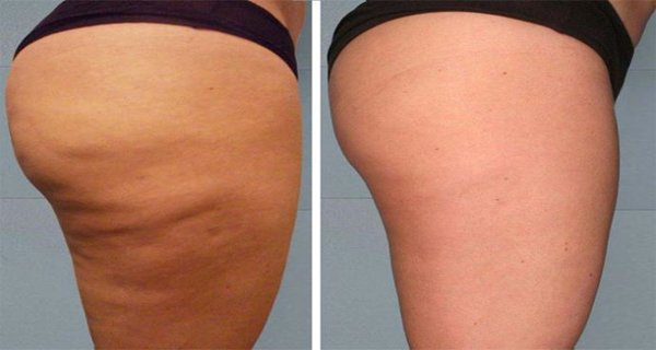 cellulite before - after
