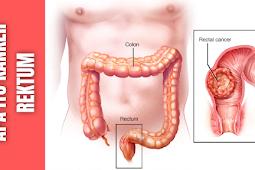 Apa Itu Kanker Rektum : Epidemiologi Kanker Rektum, Faktor Resiko Kanker Rektum