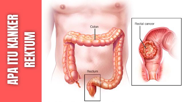 Apa Itu Kanker Rektum : Epidemiologi Kanker Rektum, Faktor Resiko Kanker Rektum Pengertian Kanker Rektum  Kanker rektum diartikan sebagai keganasan yang terjadi pada rektum, yaitu bagian terbawah dari usus besar. Salah satu pemicu kanker rektum yaitu masalah nutrisi dan kurangnya olah raga. Gejala kanker rektum yaitu adanya penggumpalan darah dalam satu jaringan cerna, diare atau kostipasi, serta penurunan berat badan. Selain itu, penderita kanker rektum juga merasakan nyeri di abdomen atau rektum, kejang rektum, dan kelelahan yang berlanjut.  Secara umum perkembangan kanker rektum berawal dari faktor lingkungan dan faktor genetik. Faktor lingkungan multiple beraksi terhadap predisposisi genetik atau efek yang didapat dan berkembang menjadi kanker kolon dan rektum. Terdapat 2 faktor resiko yang dapat di modifikasi dan yang tidak dapat dimodifikasi. Termasuk di dalam faktor resiko yang tidak dapat dimodifikasi dalah riwayat keluarga dan riwayat individual penyakit kronis inflamatori pada usus. Sedangkan yang termasuk di dalam faktor resiko yang dapat dimodifikasi adalah obesitas, konsumsi tinggi daging merah, merokok, dan konsumsi alkohol.    Epidemiologi Kanker Rektum Adenokarsinoma merupakan jenis kanker yang terbanyak yaitu lebih dari 90%. Sebagian kecil sekitar 5% berupa karsinoma musineum dan karsinoma signet ring cell. Pada karsinoma musineum, sel-sel kanker banyak mensekresi musin ekstraseluler, sedangkan pada bentuk signet ring cell terjadi penumpukan musin intraseluler. Pada tipe signet ring cell prognosisnya sangat jelek dan sering ada metastase jauh pada saat diagnosis ditegakkan. Jenis ini juga sering tumbuh meluas secara longitudinal pada dinding kolon tanpa menimbulkan distorsi yang nyata pada mukosa sehingga kolon menjadi kaku dan keras yang disebut linitis plastika.    Menurut WHO tipe histologi dari kanker rektum yaitu :  Adenocarsinoma in situ Adenocarsinoma Mucinous (colloid) adenocarsinoma (>50% mucinous) Signet ring cell carcinoma (>50% signet ri