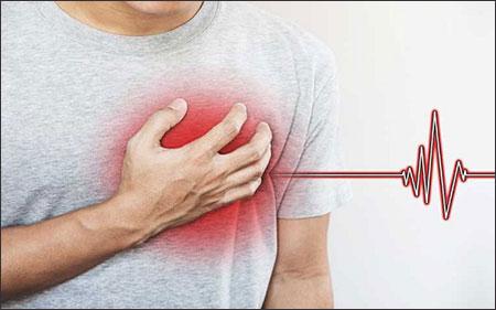 Paroxysmal Supraventricular Tachycardia