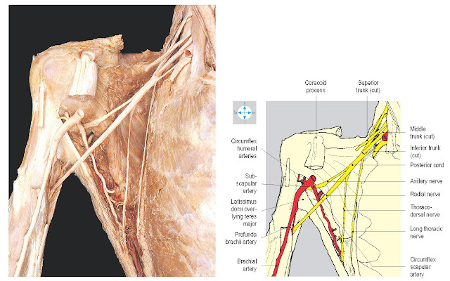 Some posterior branches of the brachial plexus seen after removal of the more anterior parts of the plexus. Biceps brachii and coracobrachialis have been excised.