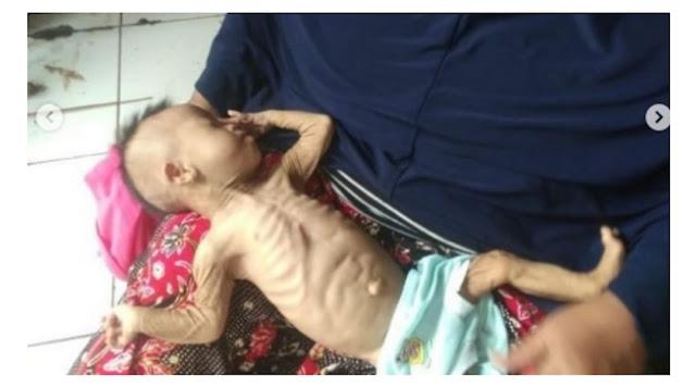 Ibu Kejam Ini Kurung Bayinya di Lemari Agar Mati Kelaparan, Saat Diselamatkan Kondisinya Memprihatinkan, Kurus Kering Tinggal Tulang dan Kulit