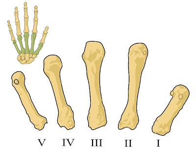 Maladies rhumatismales - Pixabay