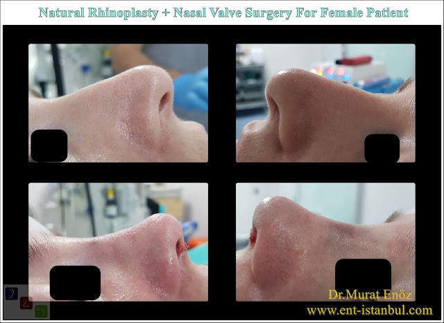 Natural rhinoplasty in Istanbul, nose job for female patient,Nasal valve collapse surgery, droopy nose tip aesthetic