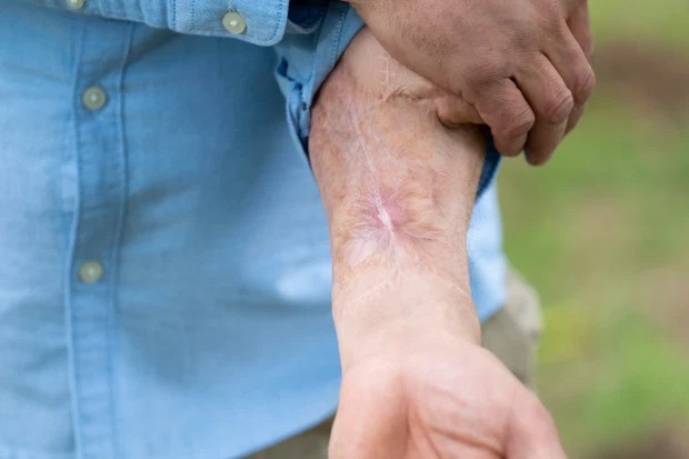 Man Who Lost His Pen!s To Horrific Blood Infection Becomes First Man In The World To Have A New One Built On His Arm [Photos]