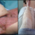 BEWARE: Mother Almost Lost Her Legs After Shaving Her Bikini Line-Must Read
