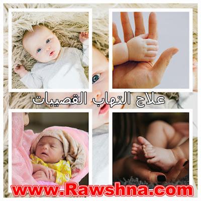 ما هو علاج التهاب القصيبات للأطفال حديثي الولادة ؟