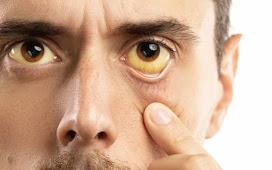 Choose Treatment for Irritating Yellow Eyes