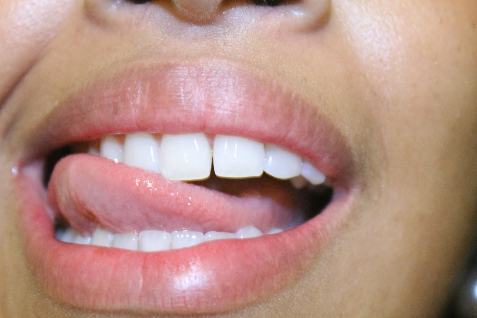 eau oxygne dents blanches best eau oxygne dents blanches with eau oxygne dents blanches. Black Bedroom Furniture Sets. Home Design Ideas