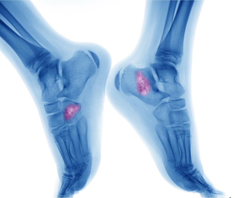 Ciri- Ciri, Penyebab dan Pencegahan Kanker Tulang