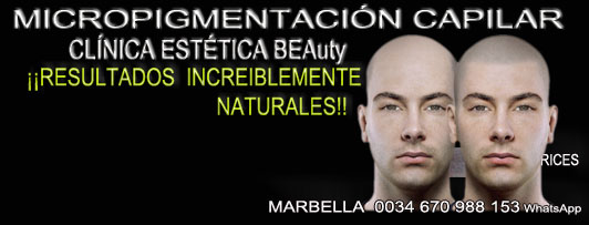 clinica estética, dermopigmentacion capilar en Málaga o en Marbella y maquillaje permanente en marbella ofrece: dermopigmentacion capilar , tatuaje capilar