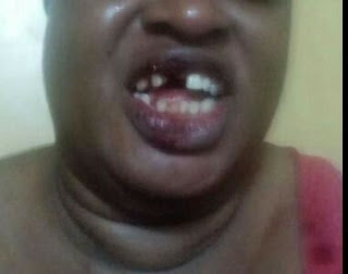 Omg! Man knocks off wife's teeth for refusing to abort pregnancy (PHOTOS)