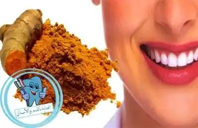 فوائد كركم للاسنان،تبييض الاسنان بالكركم ،تبييض الاسنان بالكركم والليمون ،فوائد الكركم ،فوائد الكركم للاسنان