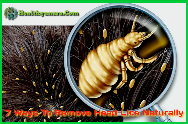 7 Ways to remove head lice naturally and easily