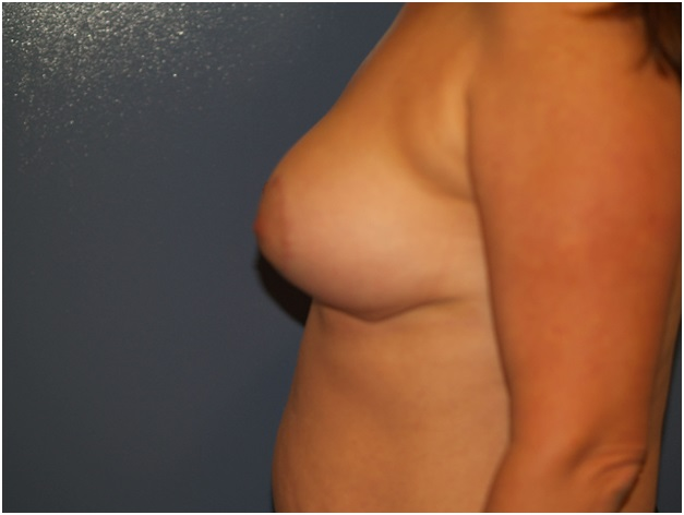 Stages after a Breast Lift at which You Should Perform Exercises
