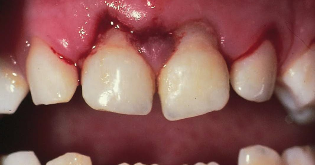 study medical photos  tooth subluxation