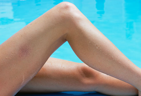 What Is A Varicose Vein How Does It Differ From Healthy