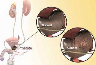 Obati Kanker Prostat Dengan 6 Tanaman Obat Tradisional