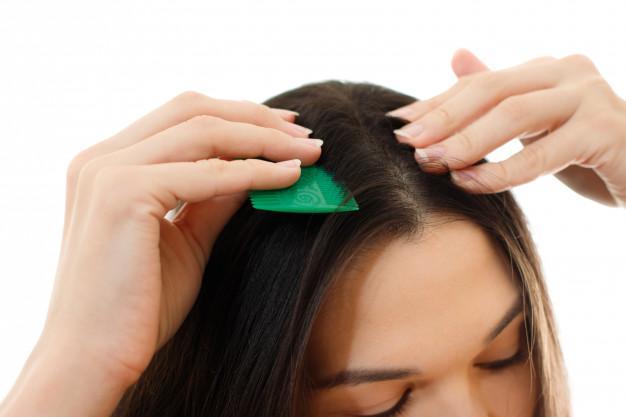 Cara Mengatasi Kepala Gatal Secara Alami untuk Kulit Kepala Gatal