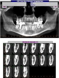 Todo lo que debes saber sobre los implantes dentales 1