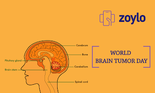 World Brain Tumour Day,Online Healthcare Information