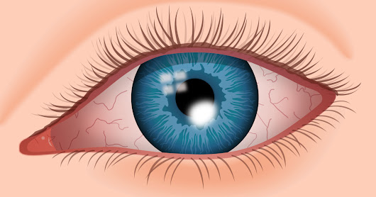Ground Reports: Corneal dystrophy: Symptoms & clinical therapies