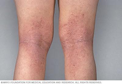 Cara Mengobati Penyakit Eksim atau Dermatitis Secara Alami Dengan Jelly Gamat