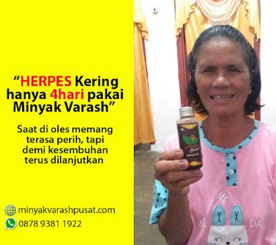 Obat Alami Herpes Cepat sembuh minyak varash