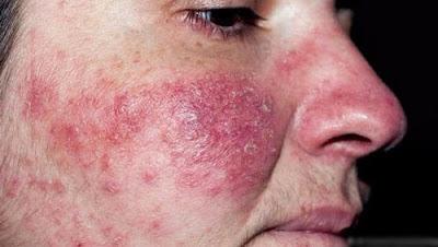 Nguyên nhân gây ra bệnh viêm da là gì