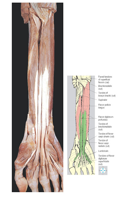 Flexor digitorum profundus and flexor pollicis longus exposed by removal of the superficial flexors. As in this specimen, the index component of flexor digitorum profundus is often separate from the rest of the muscle.