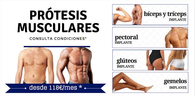 Prótesis musculares