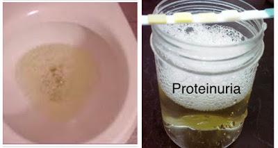 air kencing berbuih tanda buah pinggang bocor