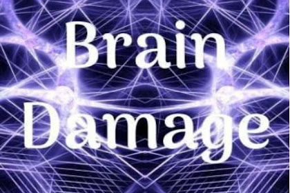 Brain Damage by Mikas4 Pdf