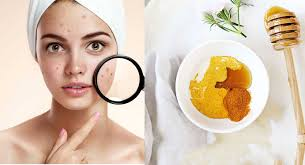 Homemade Remedies For Pimples