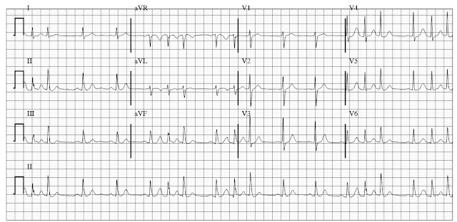 Sinus rhythm with frequent atrial couplets