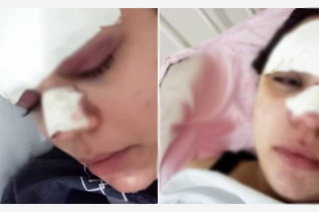 Jovem tem cortes e hematomas no rosto após ser agredida em Barra da Estiva