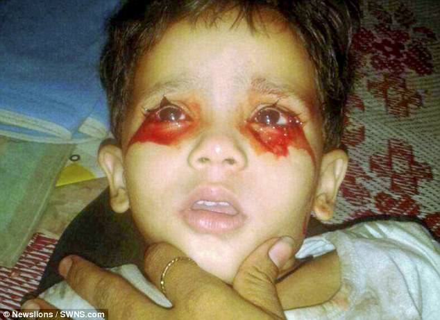 Toddler 2 Years Fever 3 Year Old Indian Girl Who Cries Tears Of Blood Bleeds
