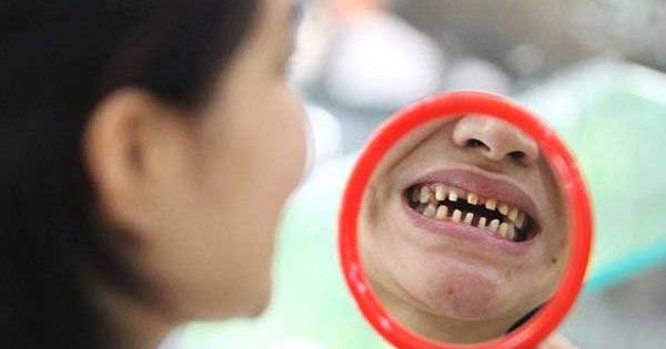 Nothing To Do With Arbroath Mother Sues Dentist After