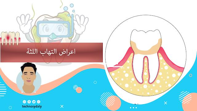 اعراض التهاب اللثة-تكنوصيدلي