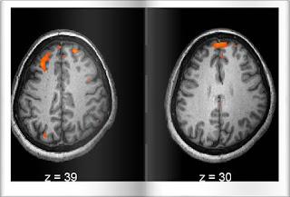 schizofrenia si dopamina noi pareri despre o posibila cauza