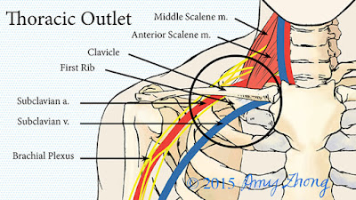 thoracic outlet syndrome cause