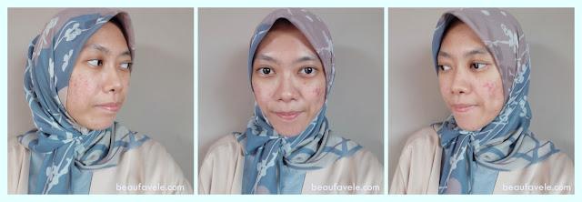 Kondisi kulit wajah setelah pakai cosrx