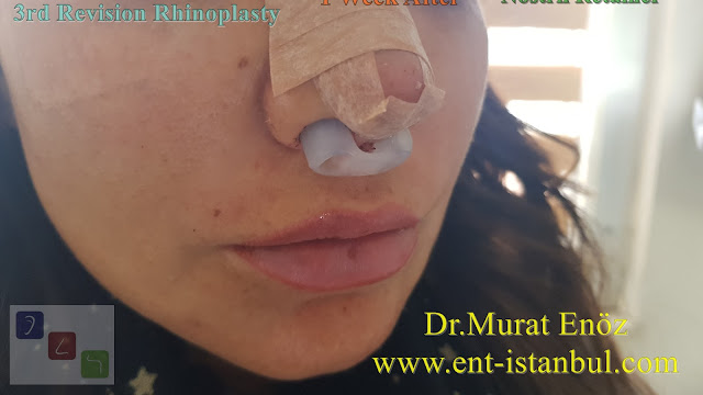 Nostril Retainer - 1 week after - 3rd Revision Rhinoplasty - Nostril Stenosis and Pollybeak Deformity - Complication Nose Surgery