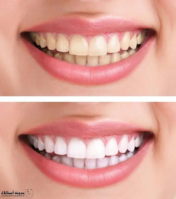أفضل أنواع وطرق تبييض الأسنان.