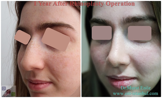 Rhinoplasty Operation in Istanbul ,Nose Job in Turkey,Nose aesthetic,1 year after rhinoplasty