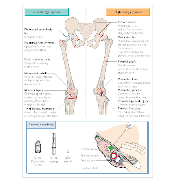 Back Pain, Hip And Knee Injuries