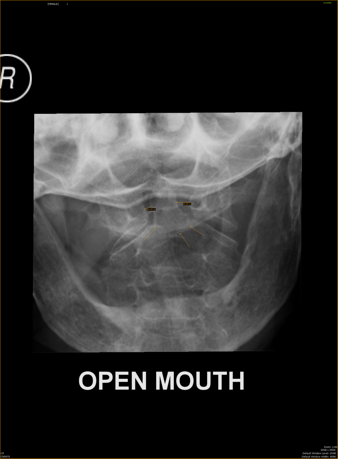 what is an odontoid fracture