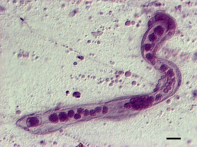 Decoding the complex life of a simple parasite