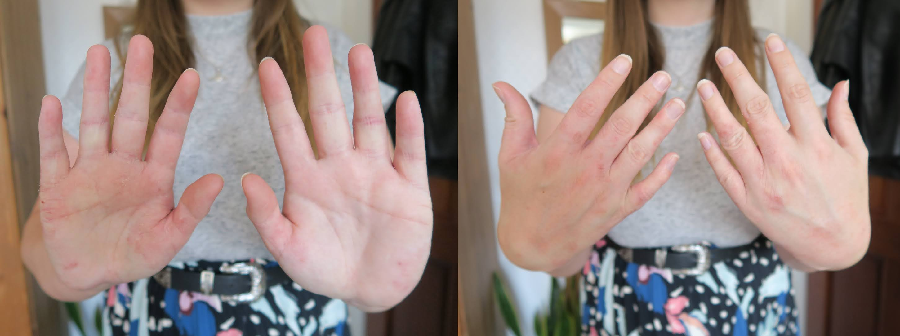 Two photos showing both sides of my hands and the visible patches of eczema